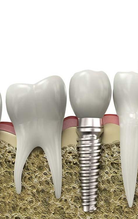 hirurgiya-i-implantologiya