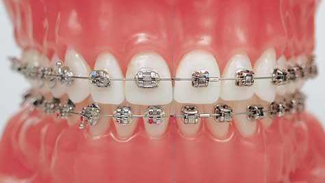 ortodontiya-uslugi