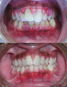Gingivitis_before_and_after-2