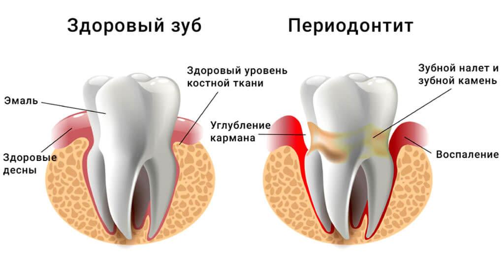 Заболевание зубов: периодонтит