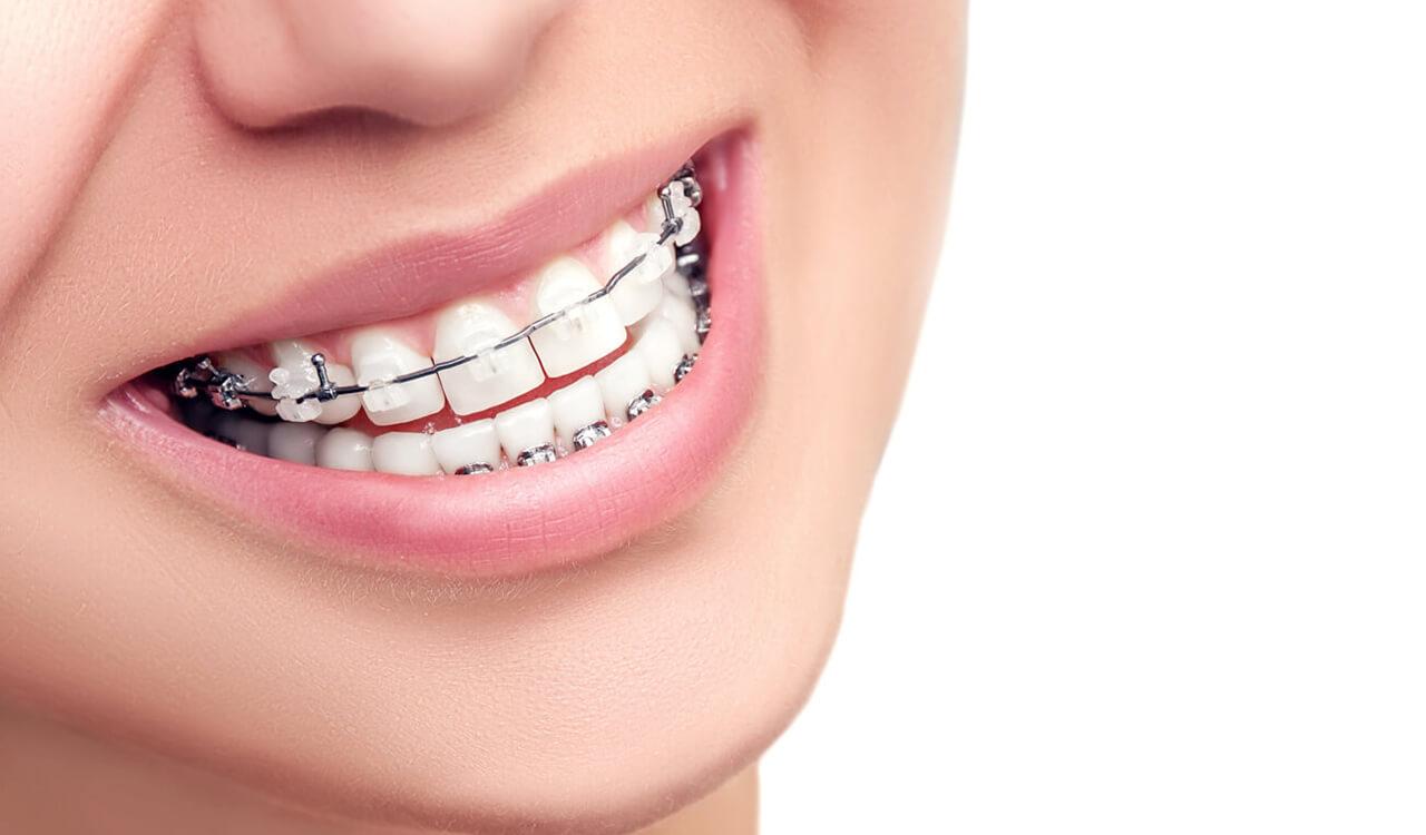 Консультация стоматолога-ортодонта